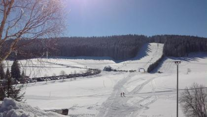 Rössle-Skilift